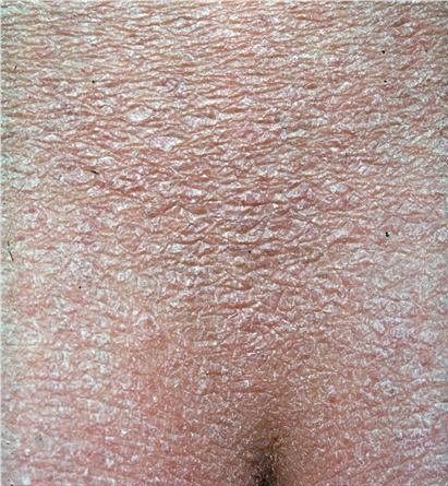 icthyosis vulgaris Medical definition of ichthyosis vulgaris: the common hereditary form of ichthyosis that is inherited as an autosomal dominant trait.