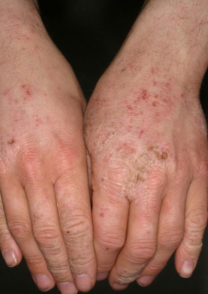 how to get rid of irritant contact dermatitis