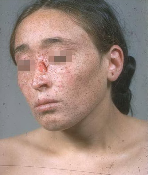 the etiology signs and symptoms treatment and pathophysiology of xeroderma pigmentosum a hereditary  Explore information about anxiety disorders, including signs and symptoms, treatment, research and statistics, and clinical trials examples of anxiety disorders.