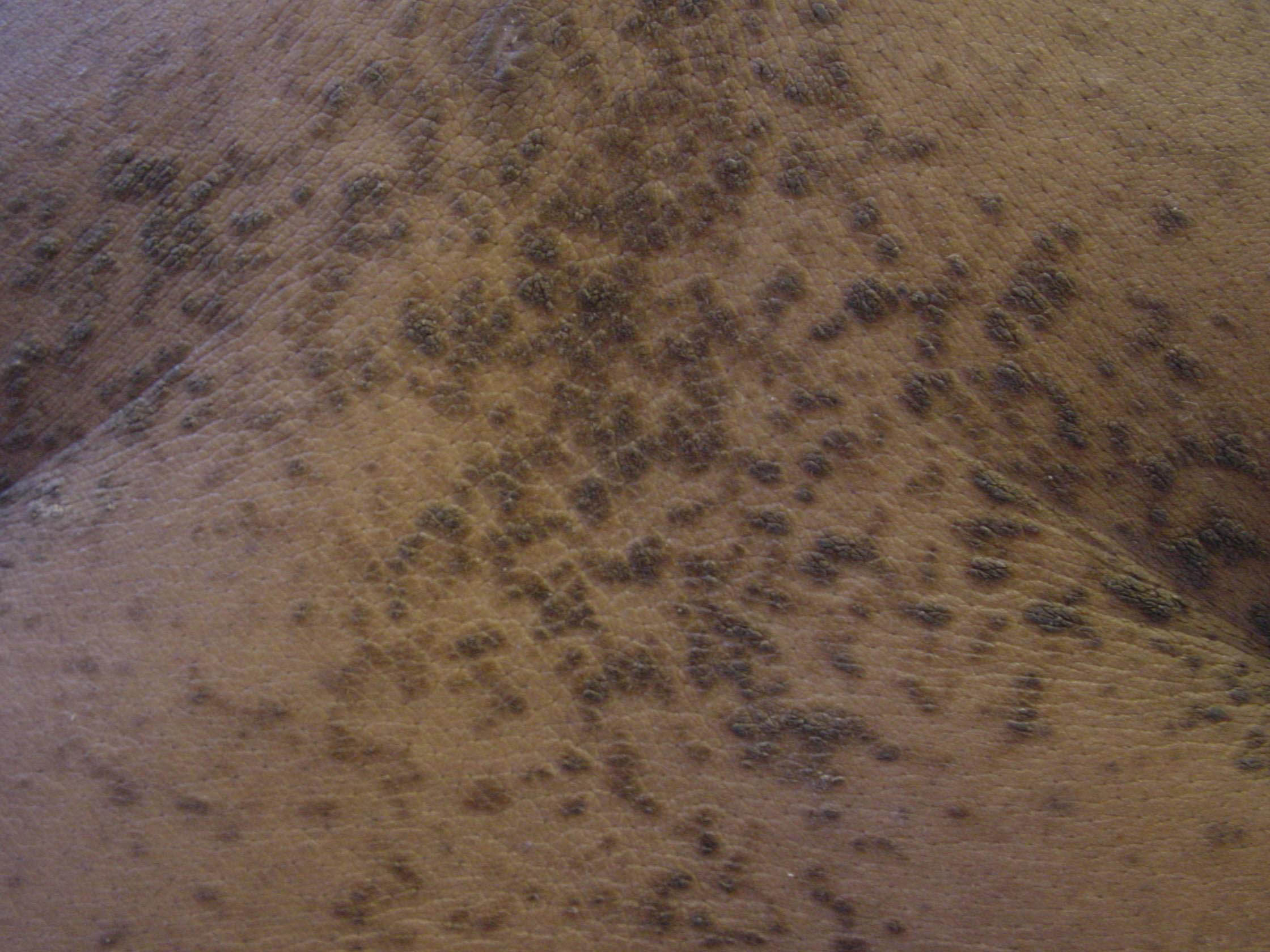 acanthosis nigricans image