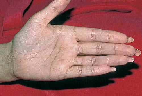 cushings syndrome and hyperpigmentation Addison's disease arises from problems with the adrenal gland such that not enough of the steroid hormone cortisol and possibly aldosterone are produced hyperpigmentation of the skin may be seen, particularly when the patient lives in a sunny area.