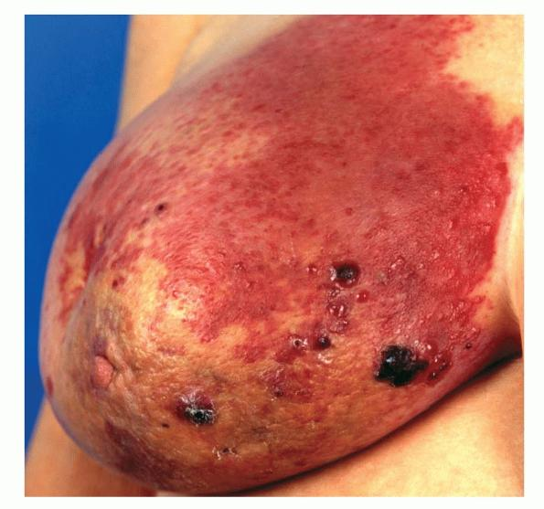 angiosarcoma breast cancer jpg 853x1280