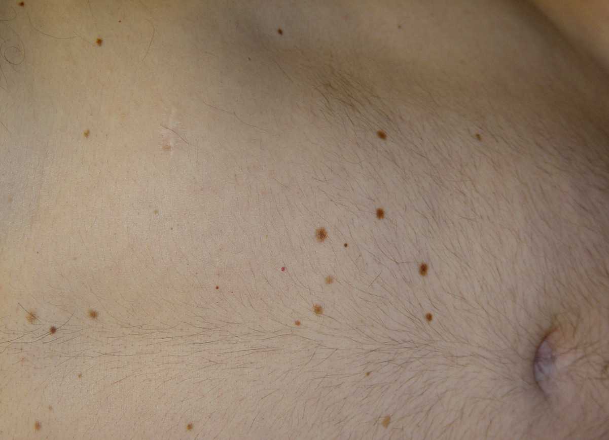 Atypical Atypical moles=شام�...
