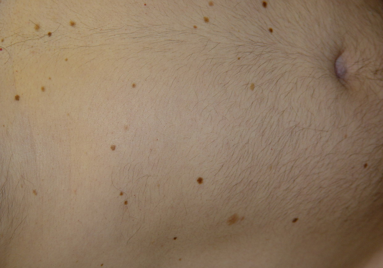 Skin Cancer | Melanoma | Signs and Symptoms - MoleScope