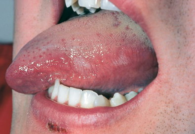 Black Hairy Tongue: Causes and Treatment - WebMD