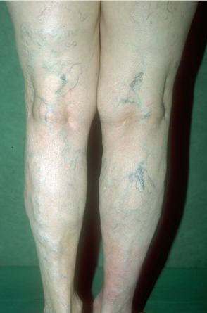 Venous insufficiency : MedlinePlus Medical Encyclopedia