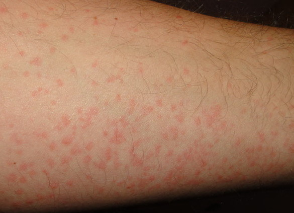 cold urticaria4 Latest Research   Cure Hives Diet