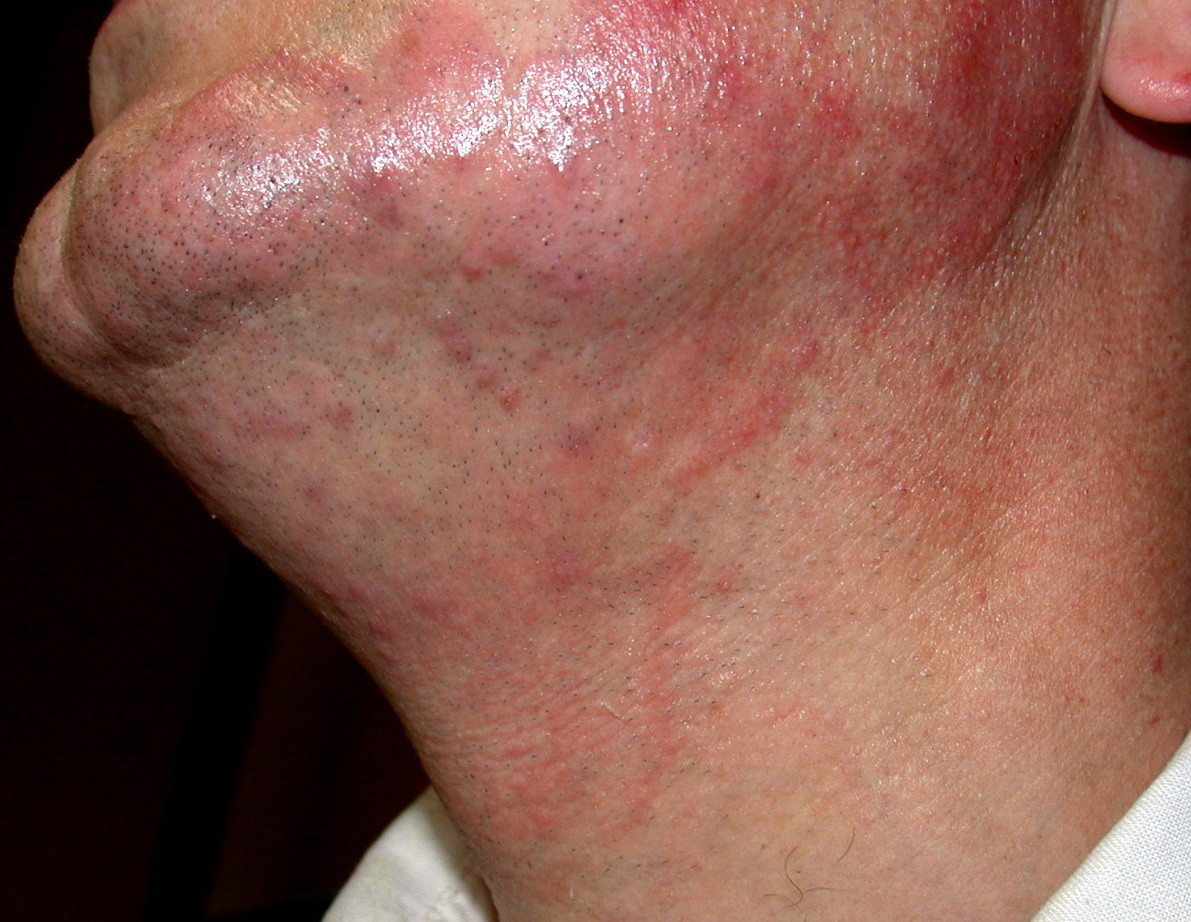 Dermatophyte (tinea) infections - UpToDate