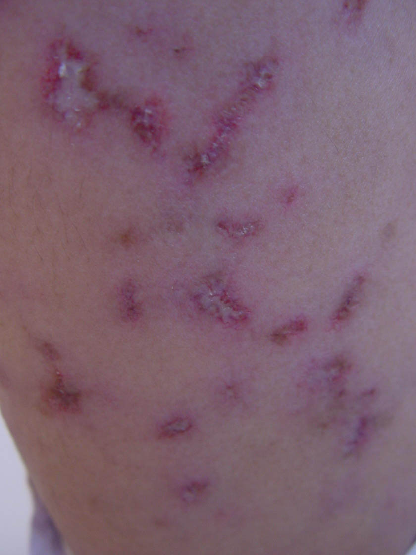 discoid lupus rash
