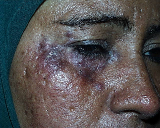 Early Diagnosis and Treatment of Discoid Lupus Erythematosus