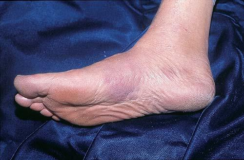 Papular Urticaria: Overview, Etiology and Pathophysiology ...