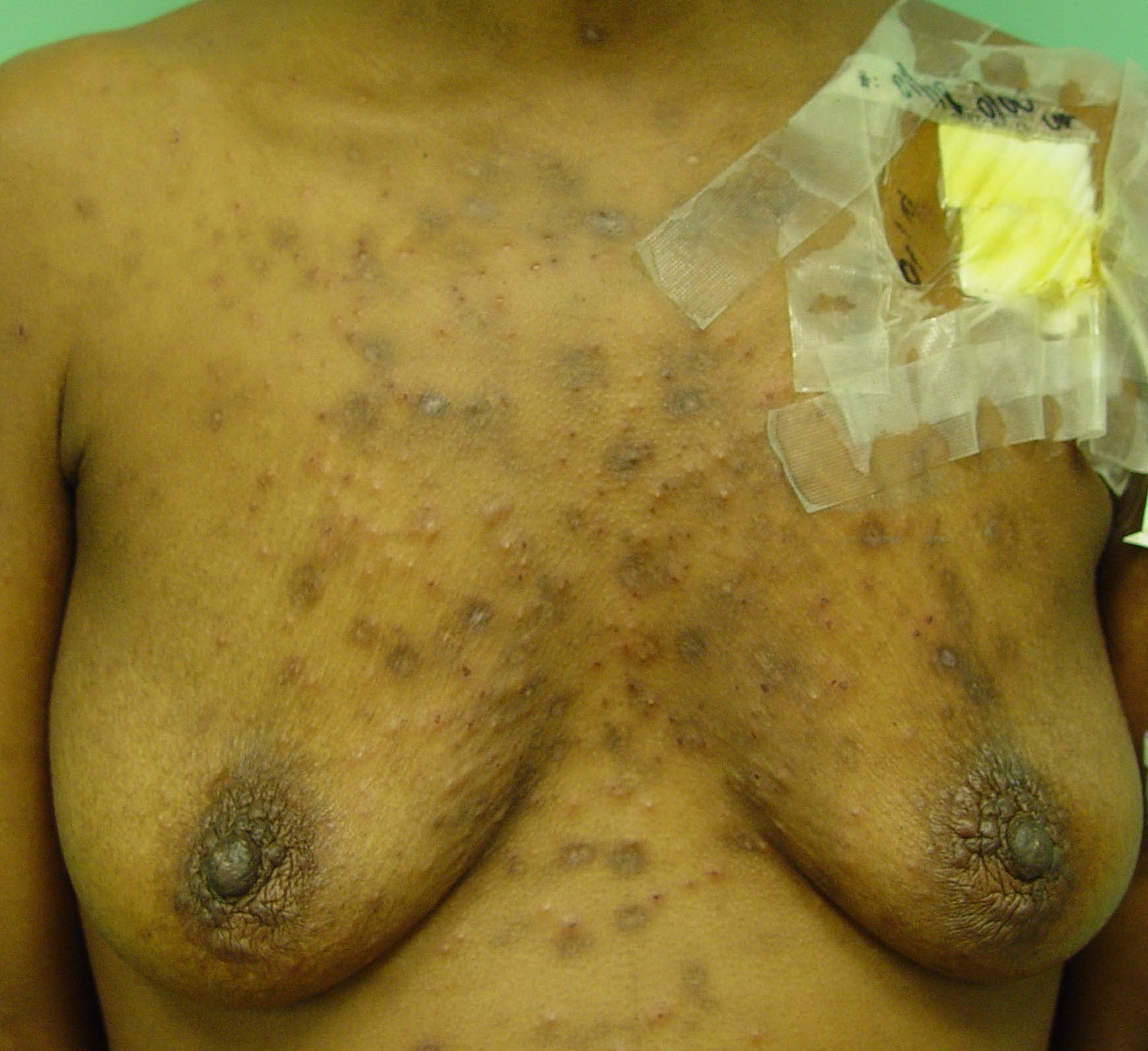 Pin Eosinophilic Pustular Folliculitis Disease Pictures on ...