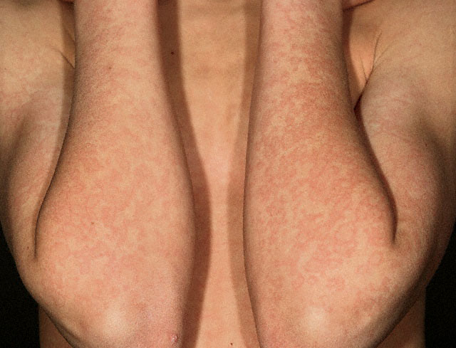 fifth disease Fifth disease is a viral illness that causes a rash it occurs most often in the winter and spring.
