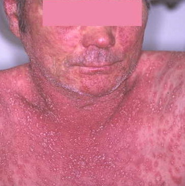 See also: Generalized pustular psoriasis 1