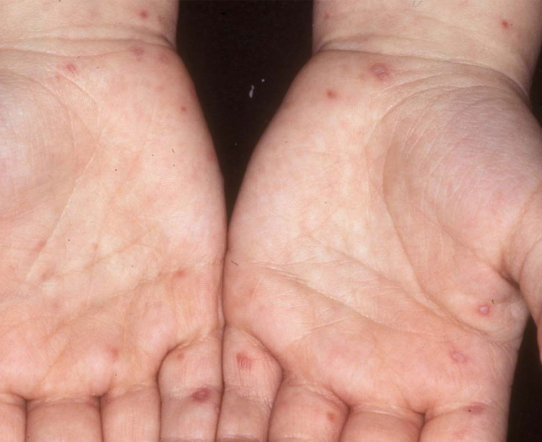 Hand, foot, and mouth diseas = داء اليد والفم والقدمHand Foot And Mouth Disease On Feet