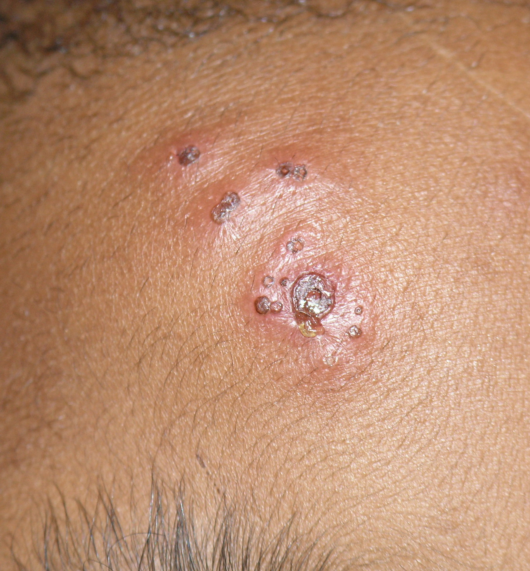 first signs of herpes male