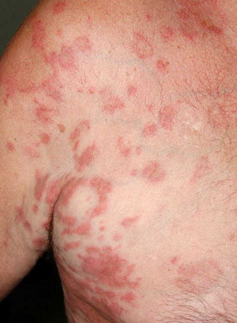 My approach to superficial inflammatory dermatoses