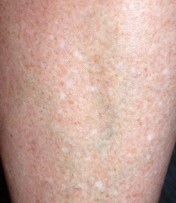 psoriasis causes and treatment