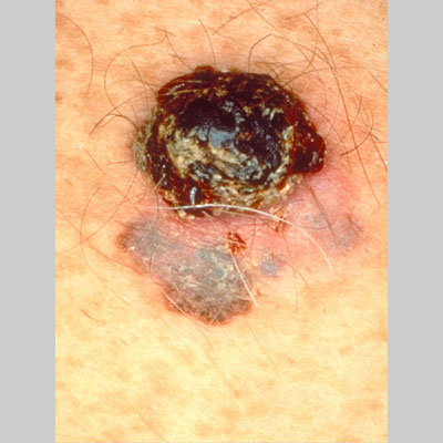 malignant melanoma Malignant melanoma is a deadly type of skin cancer associated with sun exposure australia has one of the highest rates of melanoma in the world.