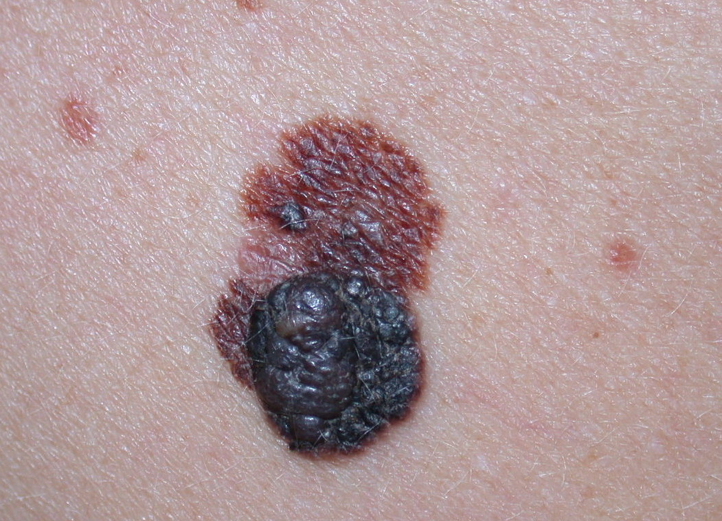 melanoma skin cancer Seeking natural remedies to prevent and treat skin damage is increasingly popular for skin cancer prevention roughly 60% of chemo-therapeutic drugs on the market are.
