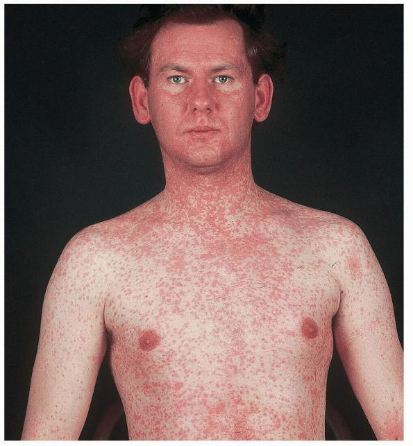 measles - photo #39