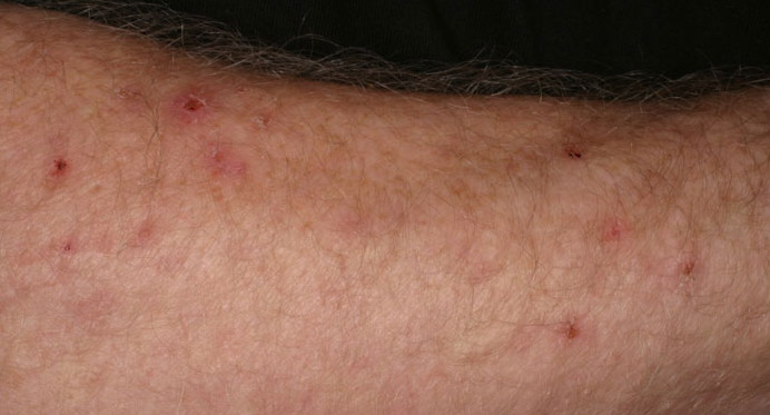 Irritant Contact Dermatitis in Adults: Condition ...