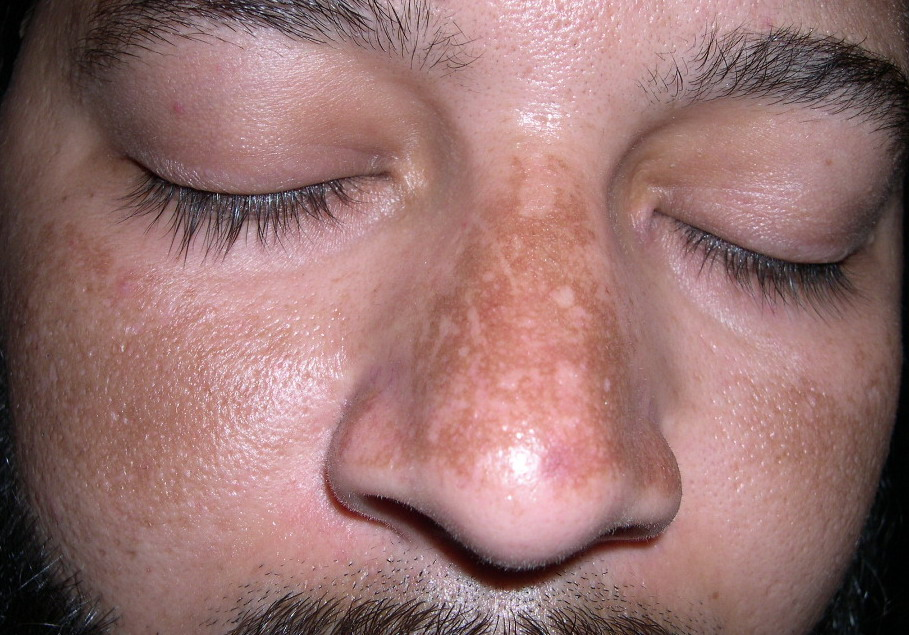 how to get rid of melasma on forehead