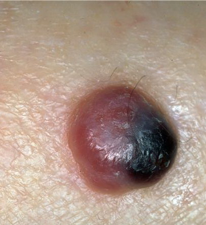 What Does Melanoma Look Like? - National Cancer Institute