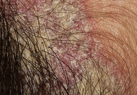 Scabies of the Scalp Pictures http://madeirasnativa.com.br/email/scabies-scalp
