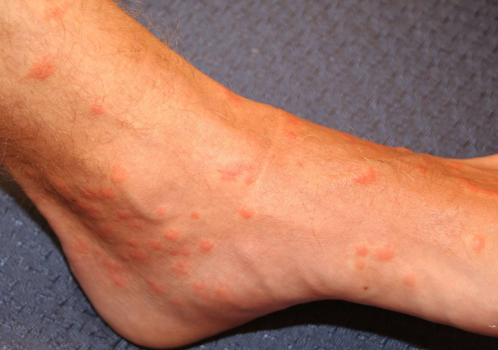 pruritic papules pictures photos