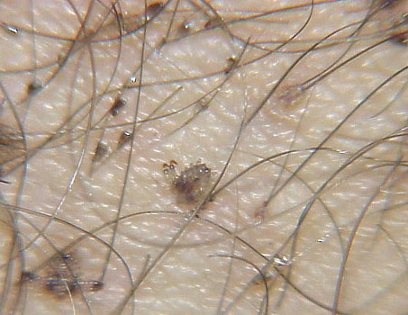 how to get pubic lice