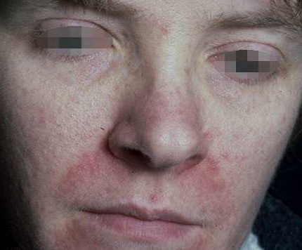 Perioral dermatitis treatment over the counter