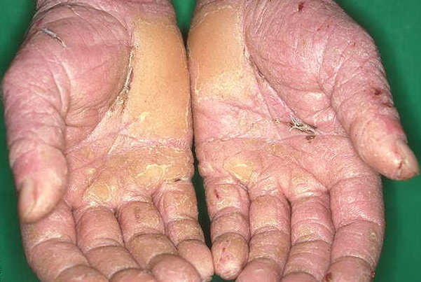 Contact Dermatitis: Causes, Symptoms, Treatments - WebMD