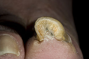 Pincer Nail Cure http://absolute-cure-for-nail-fungus.com/pincer-nail