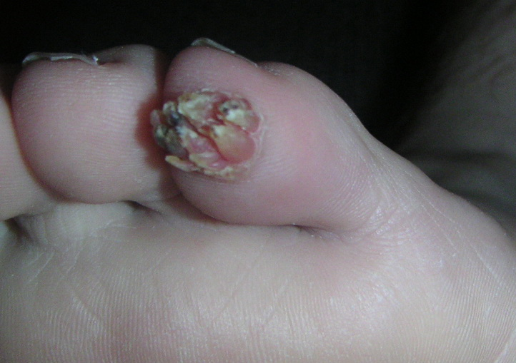 Plantar Wart Removal Stages Pain Ball Foot First