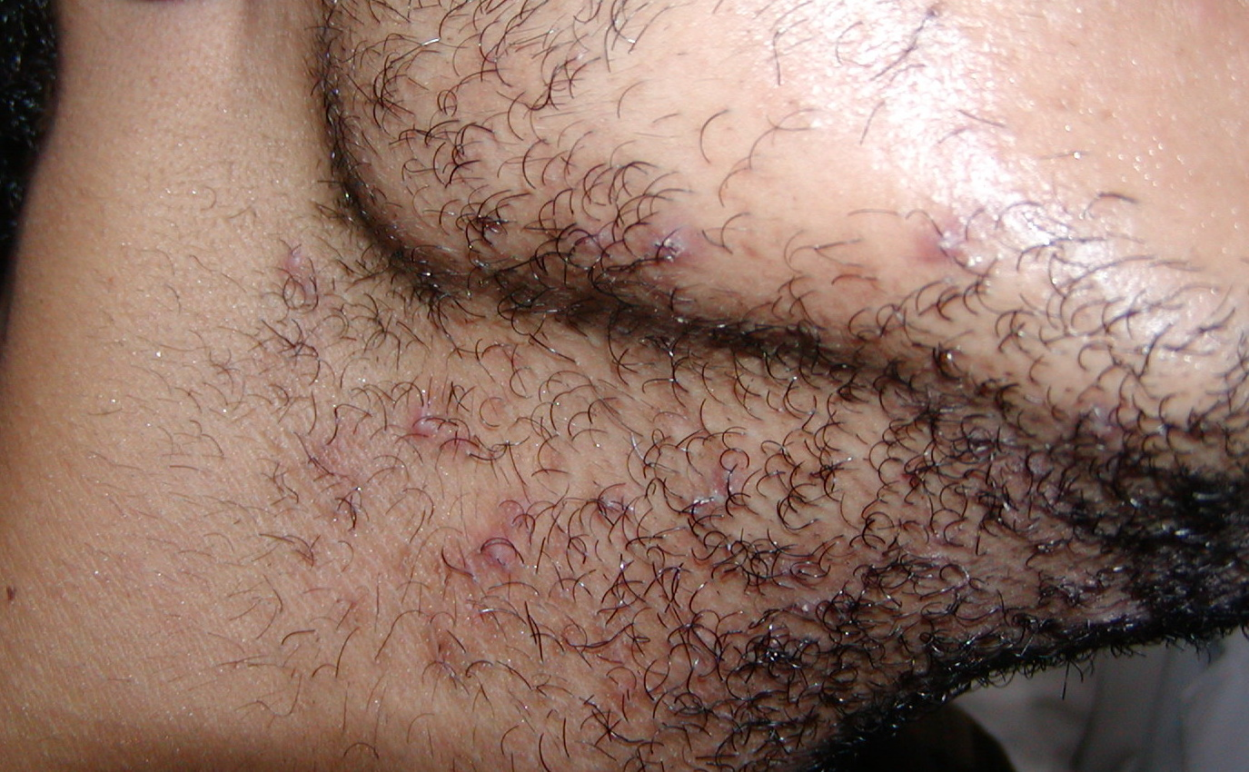 pearly penile papules steroid cream