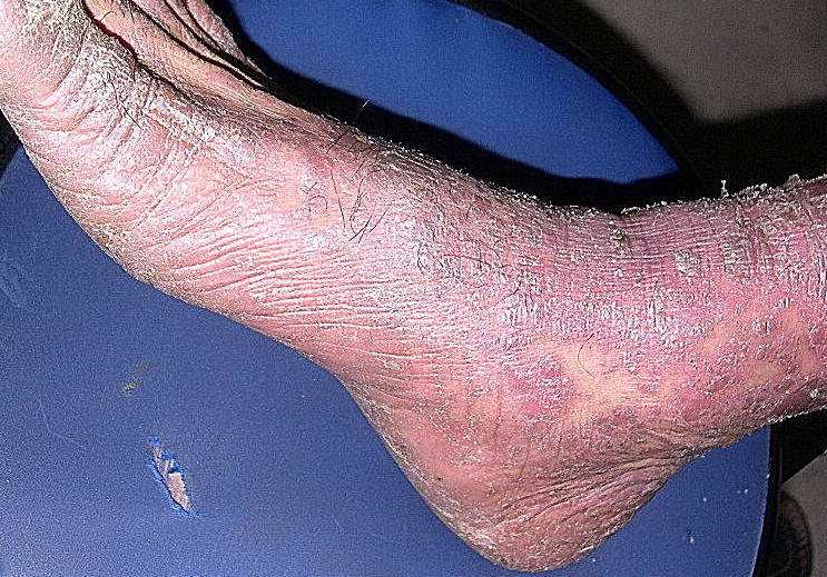 erythrodermic psoriasis pictures