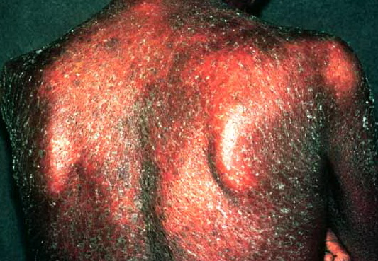 Psoriasis in Adults: Condition, Treatments, and Pictures ...