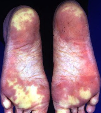 the definition and treatment of raynauds condition Undifferentiated connective tissue disease:  diagnosis and treatment,  is used to describe a condition in people who have symptoms and lab test results.