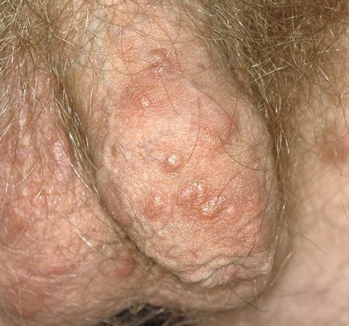 pictures of scabies on humans