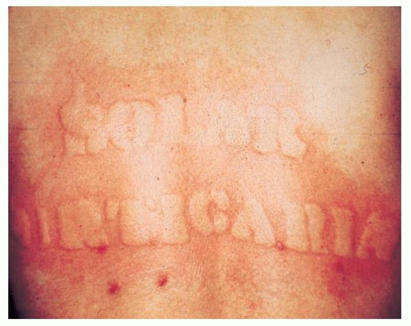 solar urticaria3 Recent Info On Treatment Of Hives Skin Rash