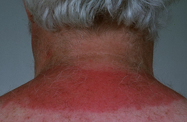 solar urticaria7 Latest Research   Remedy Hives Face
