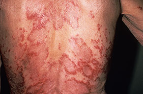 Acute Cutaneous Lupus.