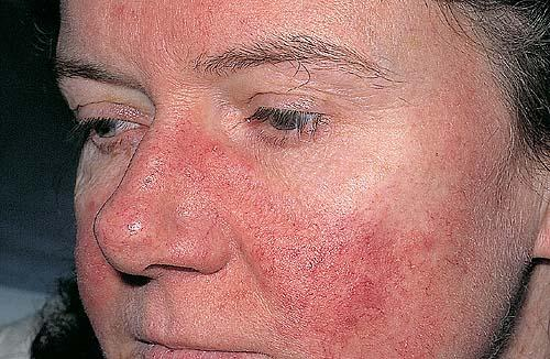 systemic lupus Systemic lupus is the most common form of lupus, and is what most people mean when they refer to systemic lupus can be mild or severe some of the more serious complications involving major.