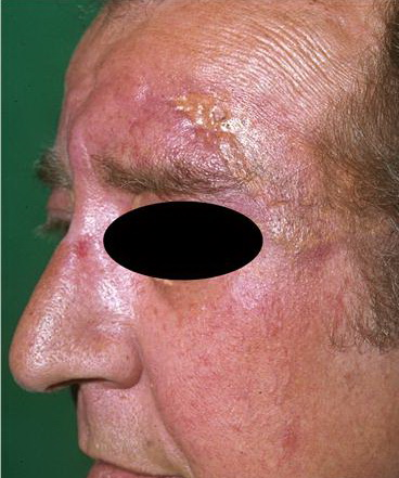 temporal arteritis treatment other than steroids