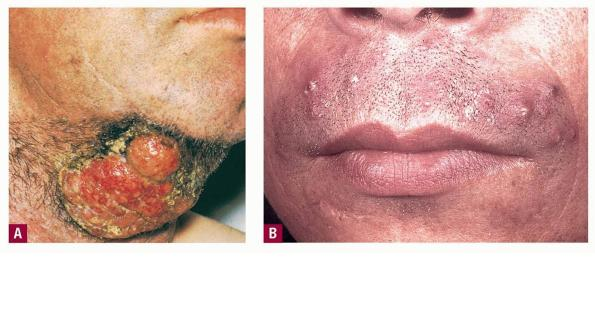 Tinea Barbae Treatment & Management - Medscape Reference