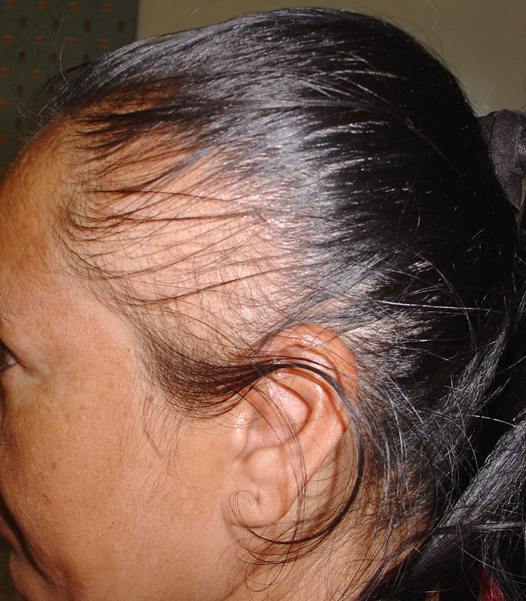 3_12 والتجارب traction-alopecia1.j