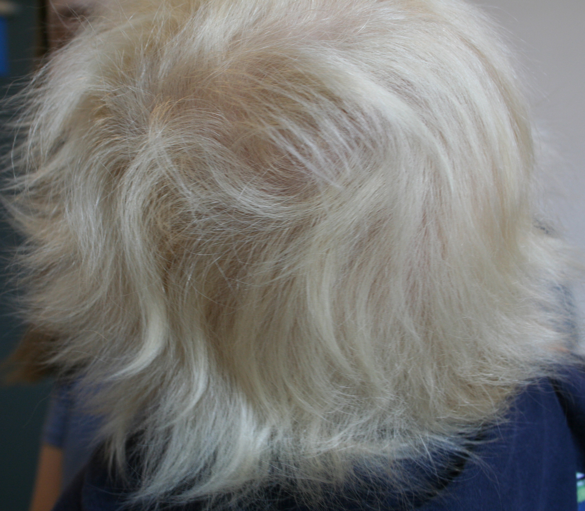 Image result for uncombable hair syndrome