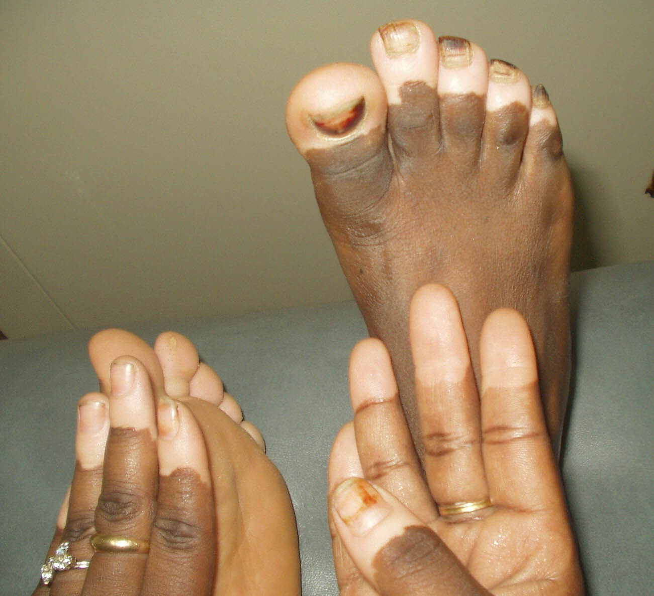 Vitiligo Treatment Natural Remedies