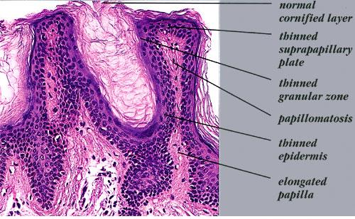 Acanthosis Nigricans A practical approach to evaluation